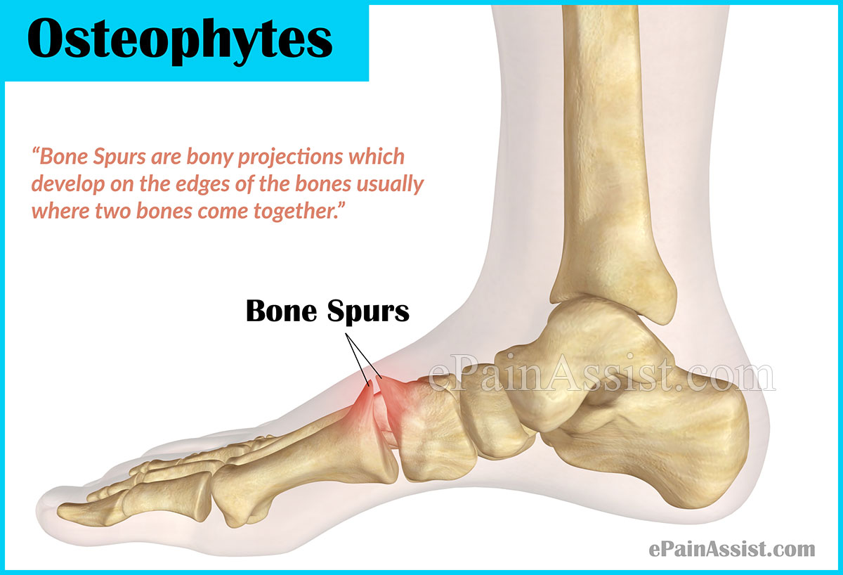 Bone Spurs Or Osteophytes Treatment Causes Symptoms