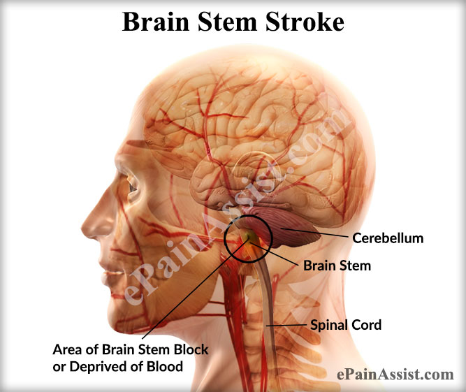 Brain Stem Stroke Treatment Life Expectancy Recovery