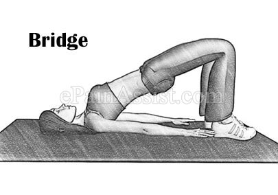 Bridge Exercises for Lordosis