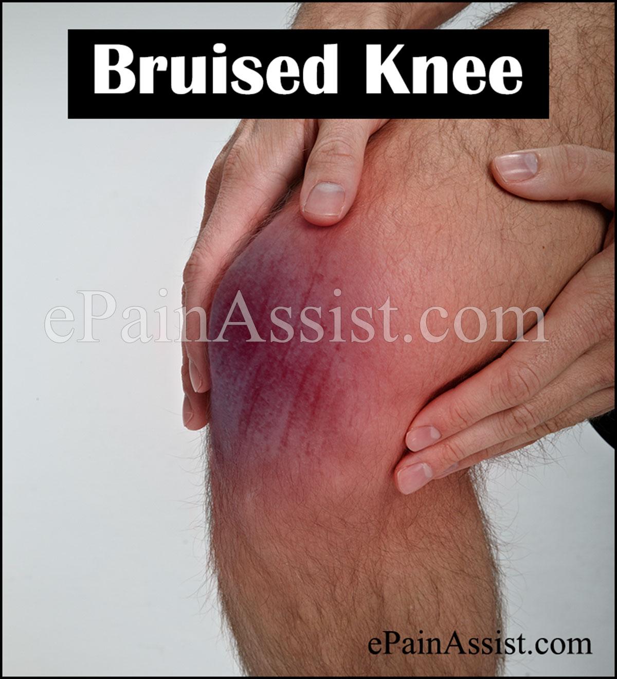 Knee Contusion (Bruised Knee)