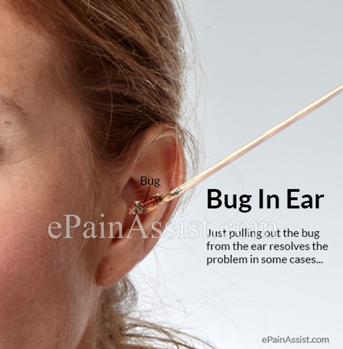 Bug In Ear