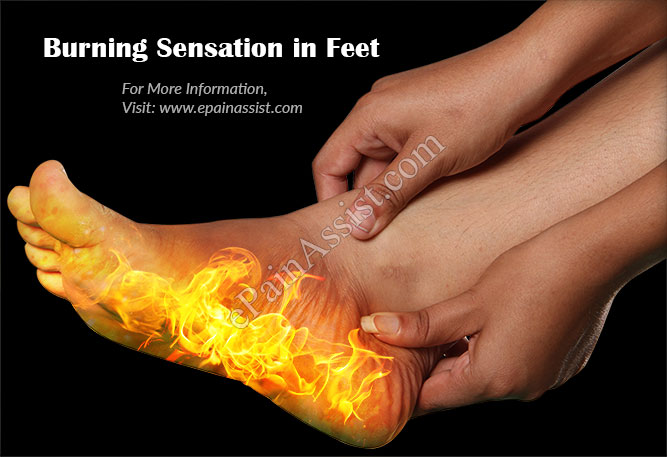 Burning Sensation in Feet