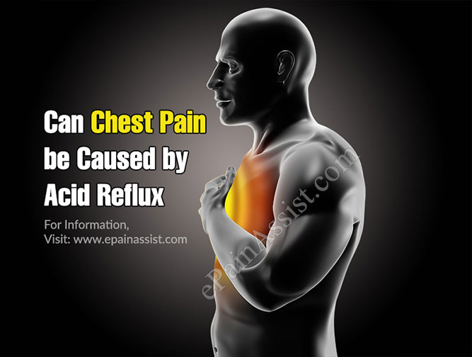 Can Chest Pain be Caused by Acid Reflux?