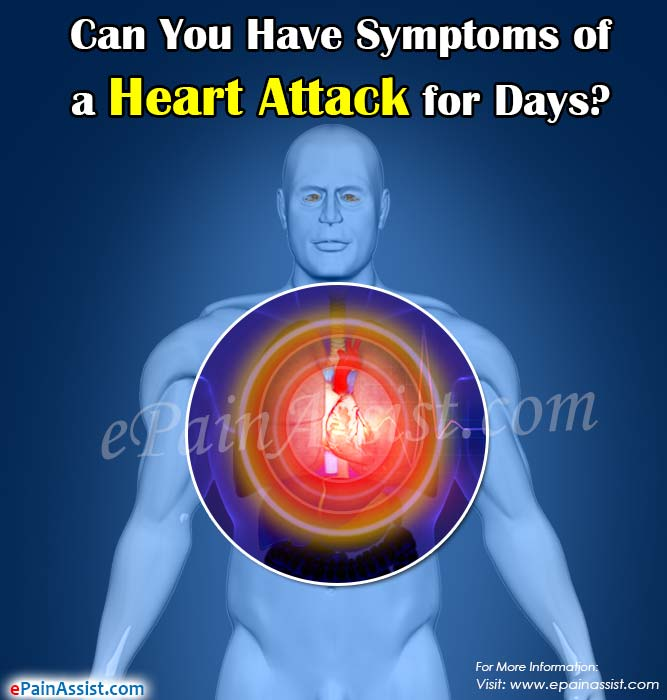 Can You Have Symptoms of a Heart Attack for Days?