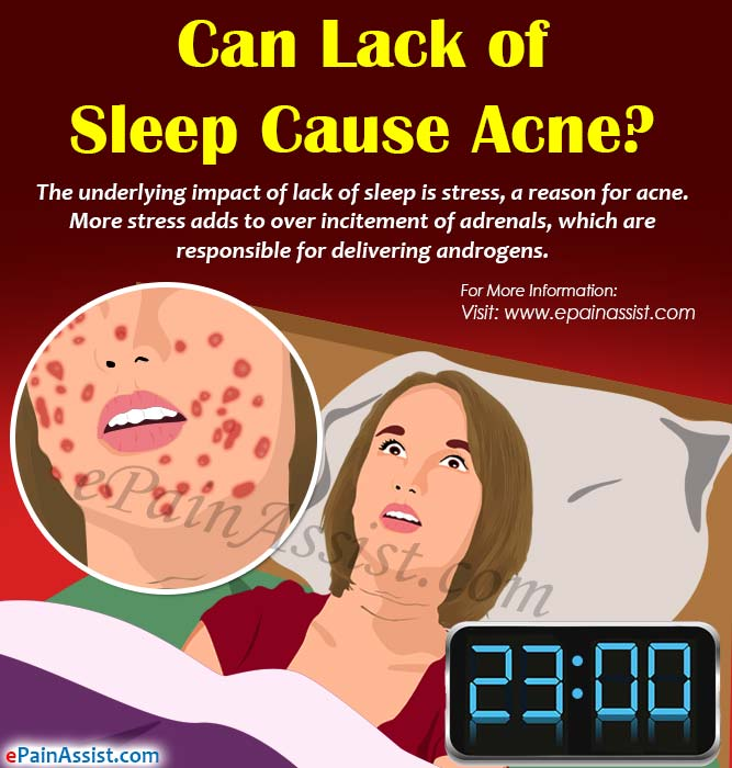 Can Lack of Sleep Cause Acne?