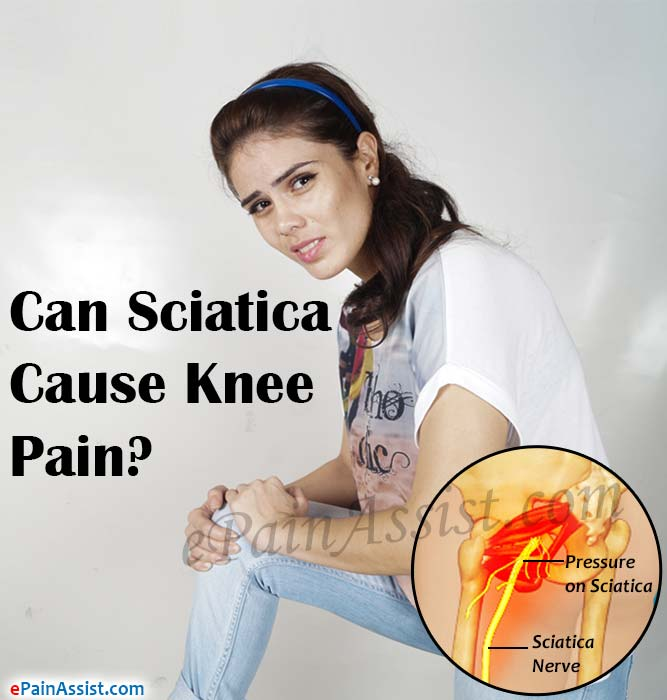 Can Sciatica Cause Knee Pain?