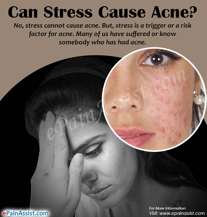 Can Stress Cause Acne?