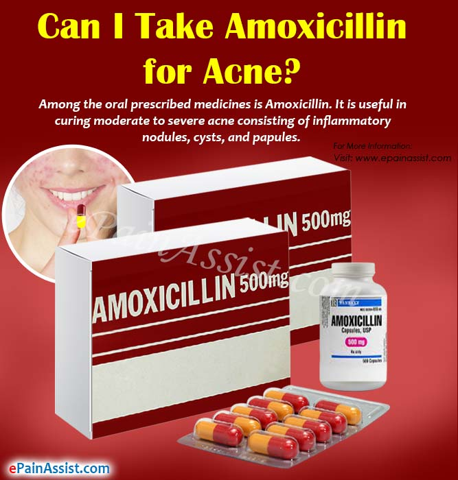 Can I Take Amoxicillin for Acne?