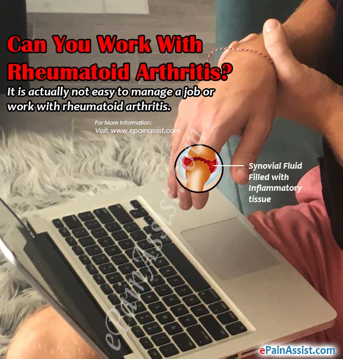 Can You Work With Rheumatoid Arthritis?
