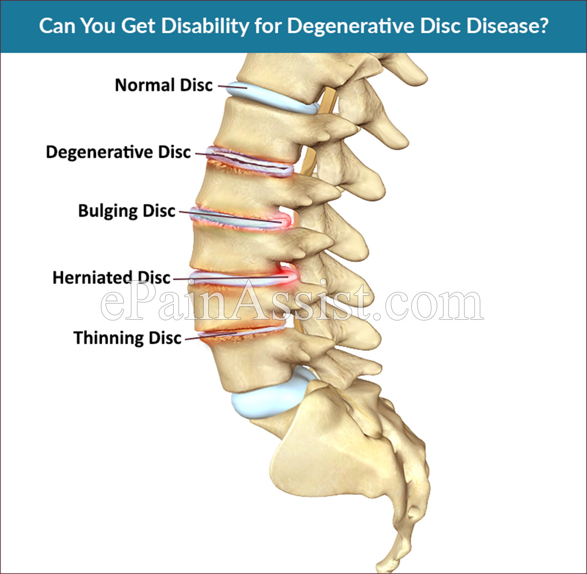 Can You Get Disability for Degenerative Disc Disease?