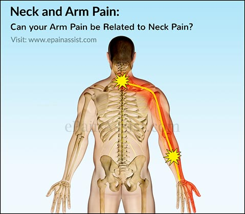 Neck And Arm Pain Can Your Arm Pain Be Related To Neck Pain