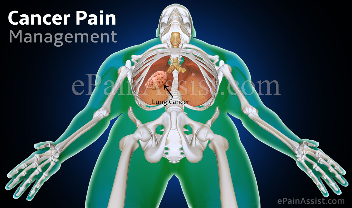 Cancer Pain Management Chemotherapy Radiation Surgery