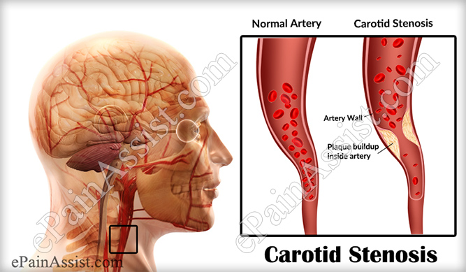 what is carotid stenosis or stenosis of the carotid artery & how, Human Body