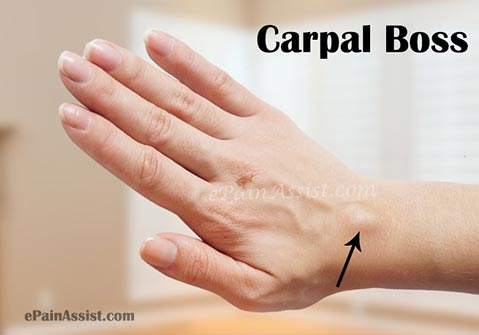 What Are The Symptoms Of Carpal Boss?