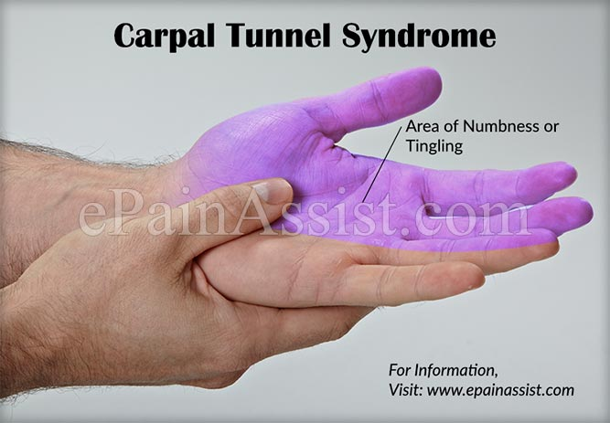 Carpal Tunnel Syndrome Know Its Causes Symptoms Treatment Exercises