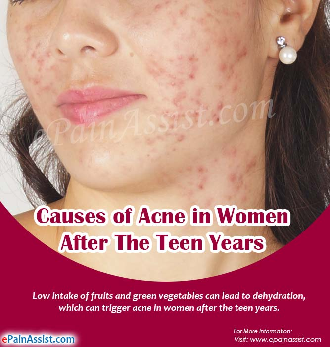 causes of Acne in Women After the Teen Years