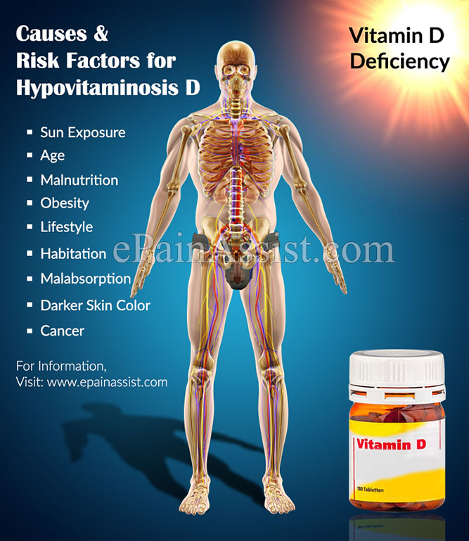 Causes & Risk Factors for Hypovitaminosis D
