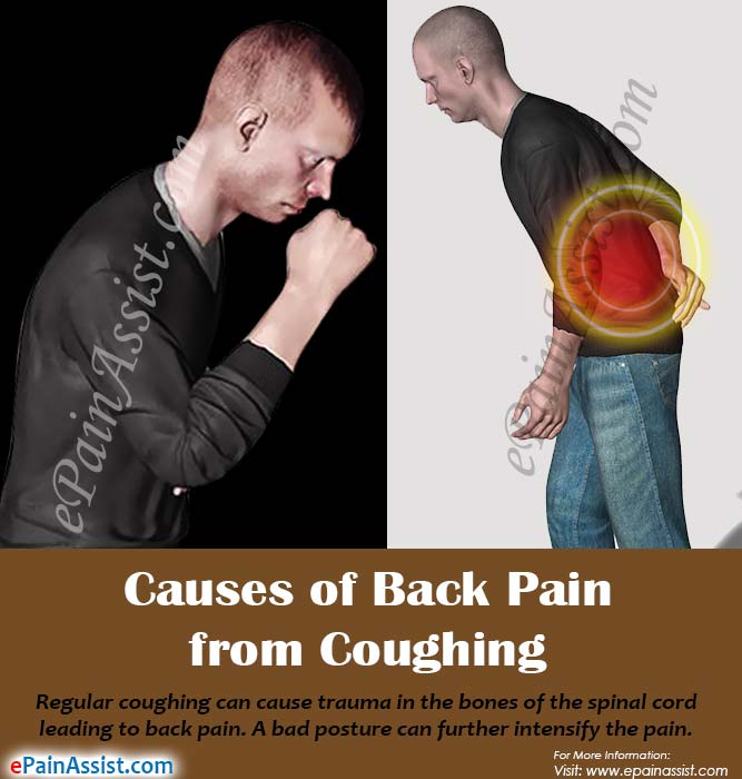 Causes of Back Pain from Coughing