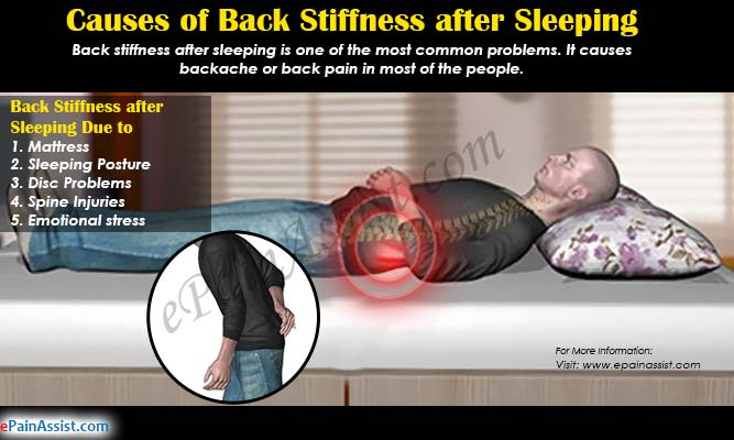 Causes of Back Stiffness after Sleeping