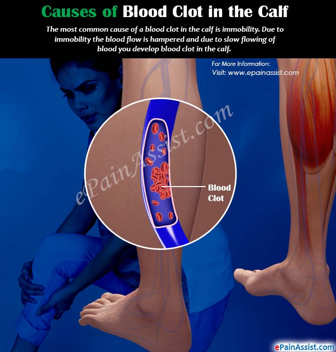 Causes of Blood Clot in the Calf