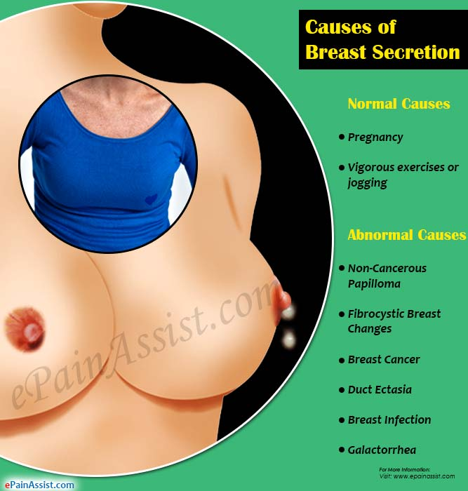 Causes of Breast Secretion or Nipple Discharge