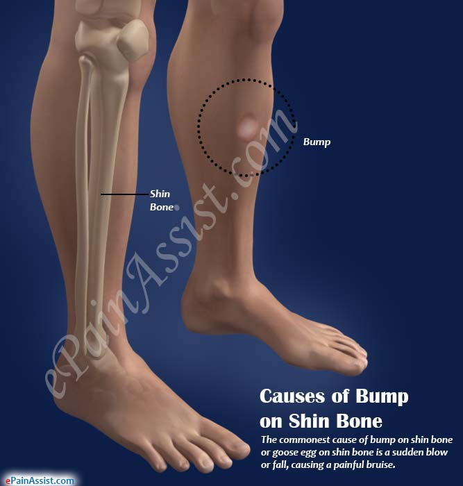 Causes, Symptoms of Bump on Shin Bone & its Natural Remedies