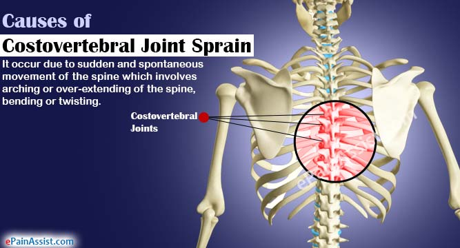 Causes of Costovertebral Joint Sprain