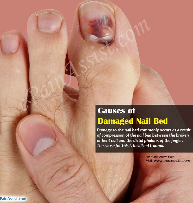 How To Treat Split Nail Bed - Best Nail 2018