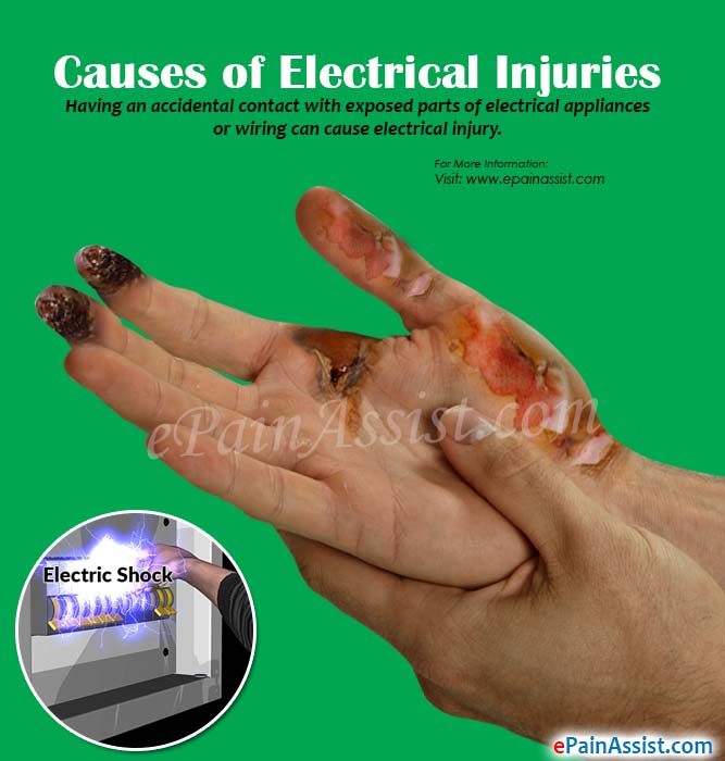 Causes of Electrical Injuries