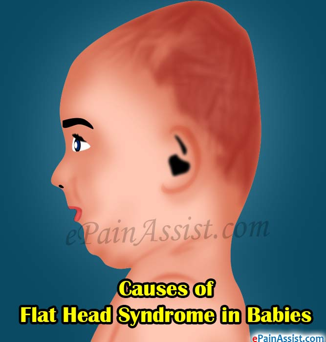 Causes of Flat Head Syndrome in Babies   Ways to Prevent it 478f0331167