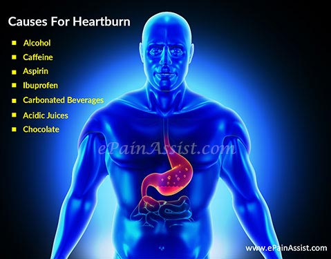 Natural Remedies For Heartburn Prevention