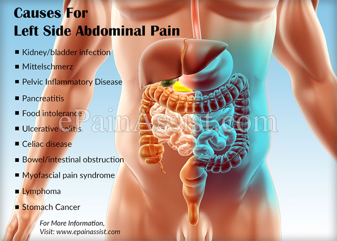 Left abdominal pain after sexually active
