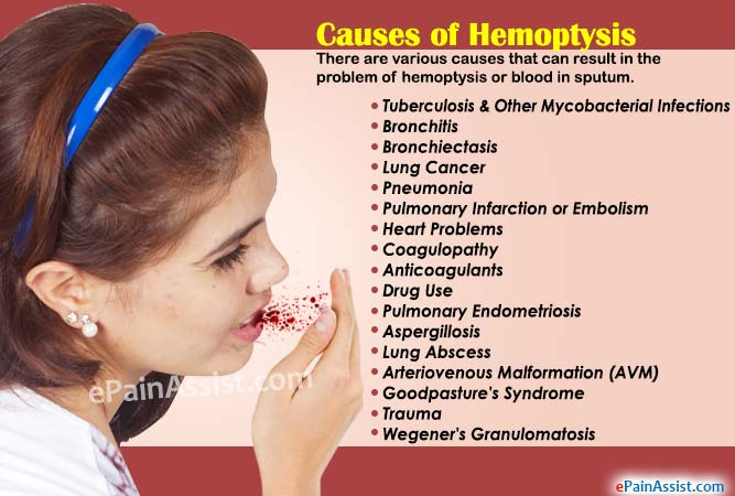 of hemoptysis or what can cause blood in sputum?, Skeleton
