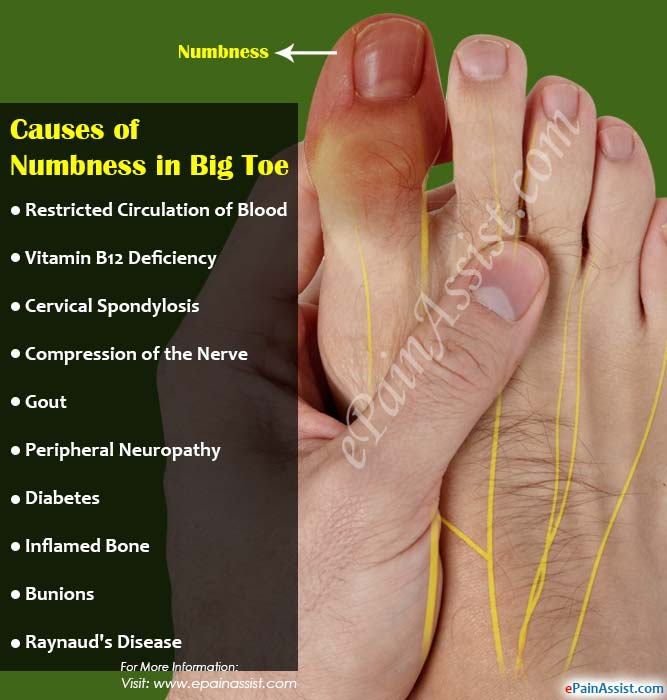 causes of numbness in big toe & its treatment, Skeleton