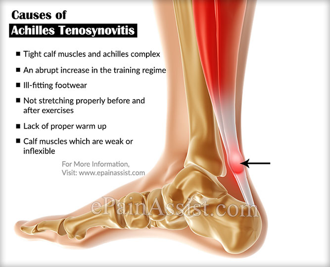 Causes of Achilles Tenosynovitis or Paratenonitis