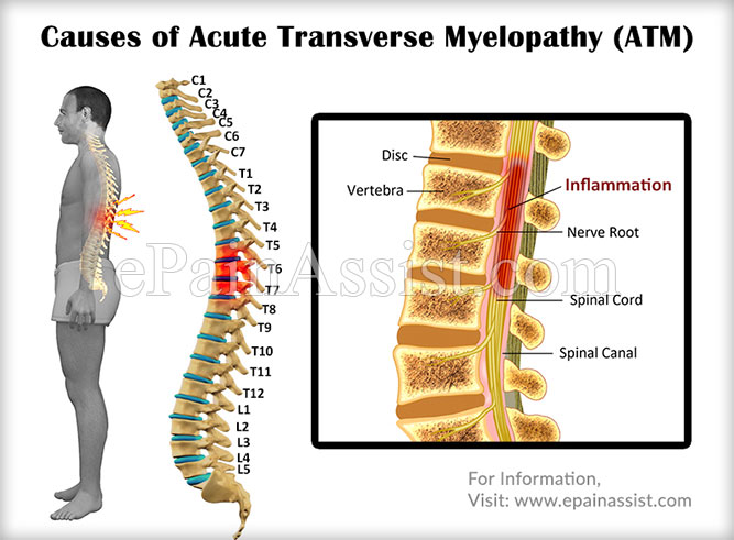 Causes of Acute Transverse Myelopathy (ATM)