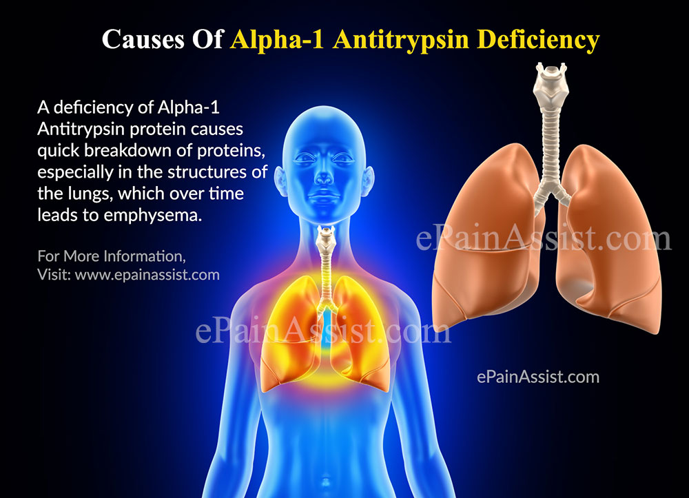alpha 1 Physician reviewed alpha 1-proteinase inhibitor patient information - includes alpha 1-proteinase inhibitor description, dosage and directions.
