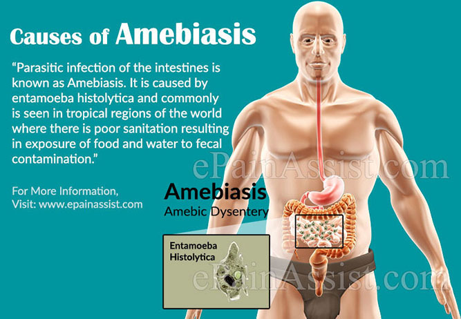 Causes of Amebiasis