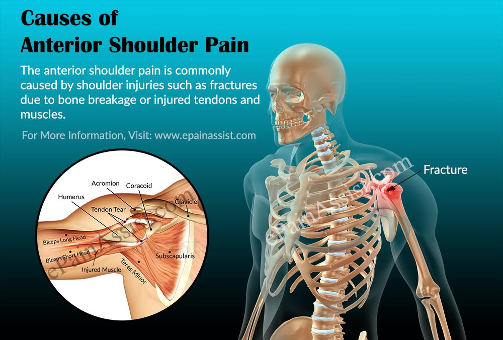 What is Anterior Shoulder Pain|Causes|Symptoms|Treatment|Exercise ...
