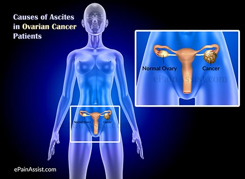 Causes of Ascites in Ovarian Cancer Patients