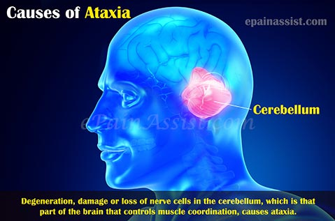 Causes Of Ataxic Gait Or Gait Ataxia