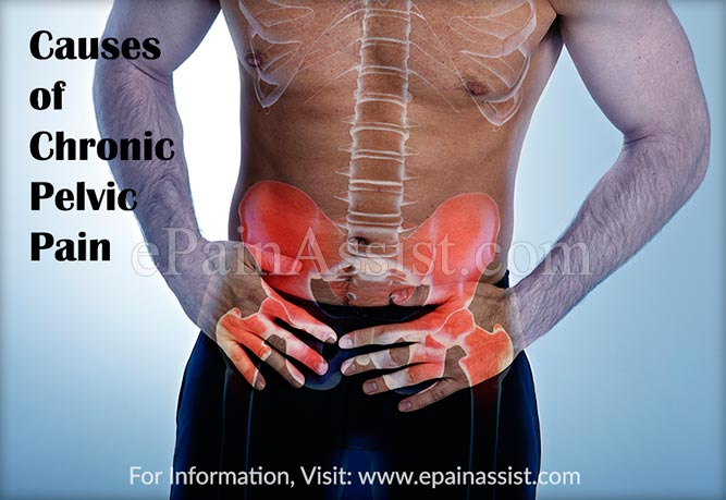 Causes of Chronic Pelvic Pain (CPP)