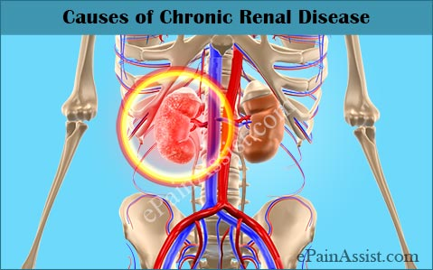 Causes of Chronic Renal Disease (CRD)