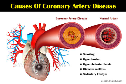 the causes symptoms and treatment of coronary heart disease