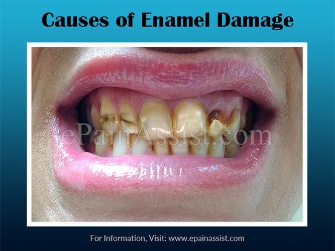 Causes of Enamel Damage