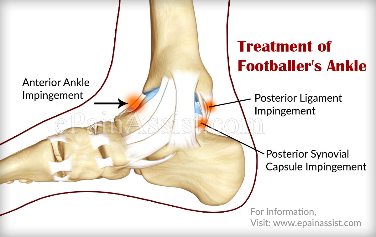 footballer s ankle causes symptoms treatment exercises