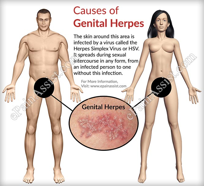 Confirm. Herpes from masturbation rare