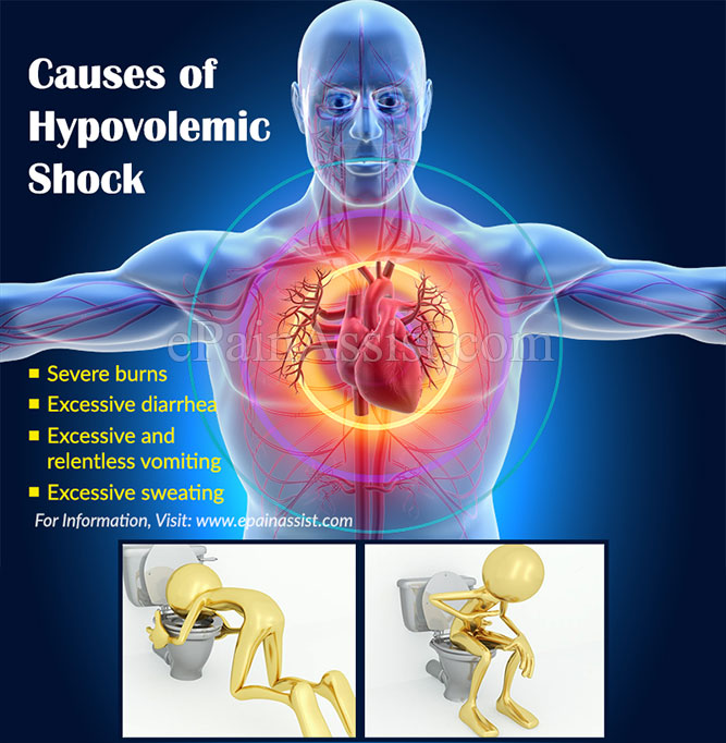 Causes of Hypovolemic Shock