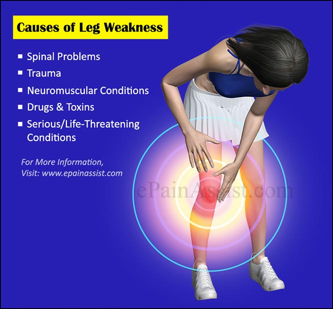 Causes of Leg Weakness