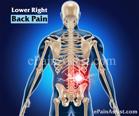Lower Right Back Pain|Causes|Symptoms|Treatment - photo#39